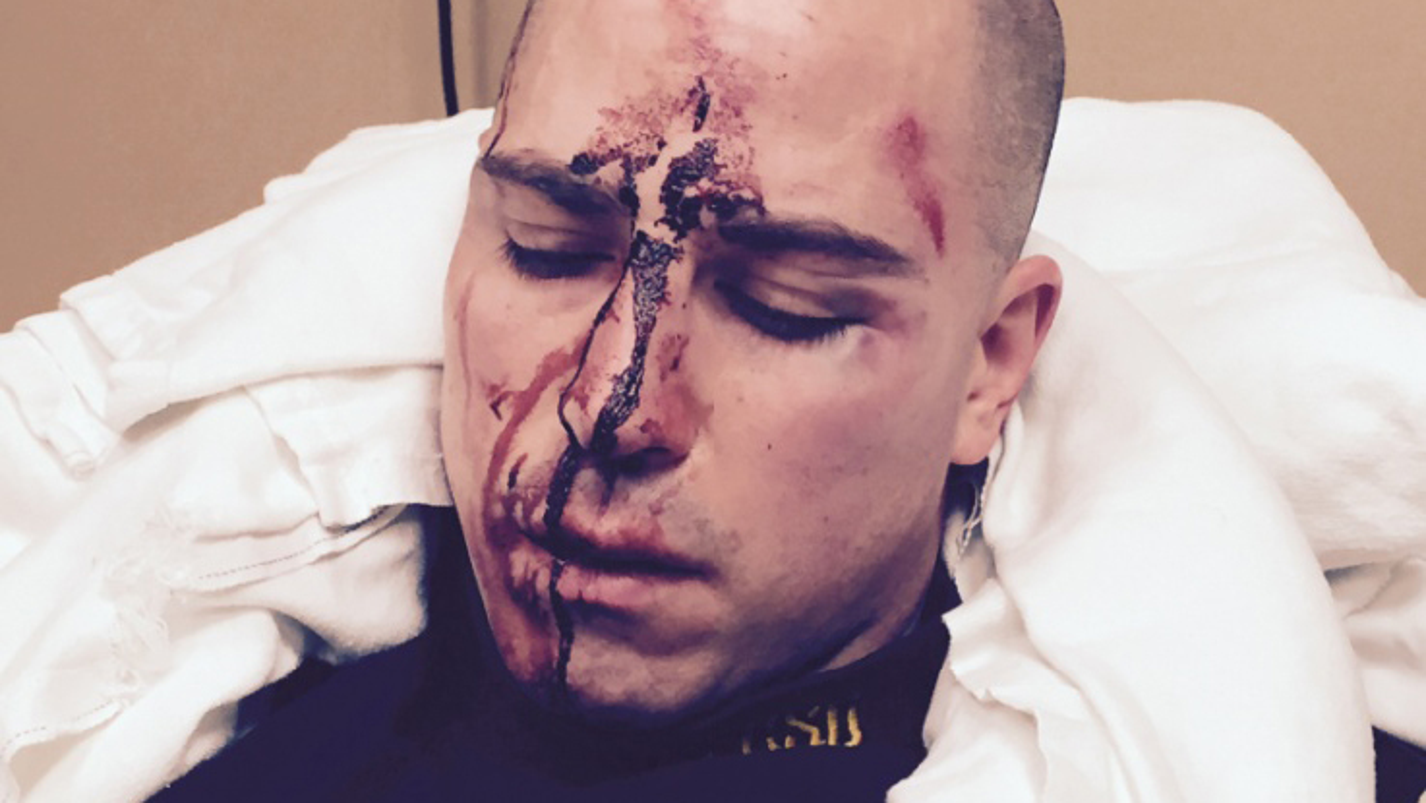 Photos of injured sergeant involved in fatal shooting released for Schlafsofa 1 40x2 00