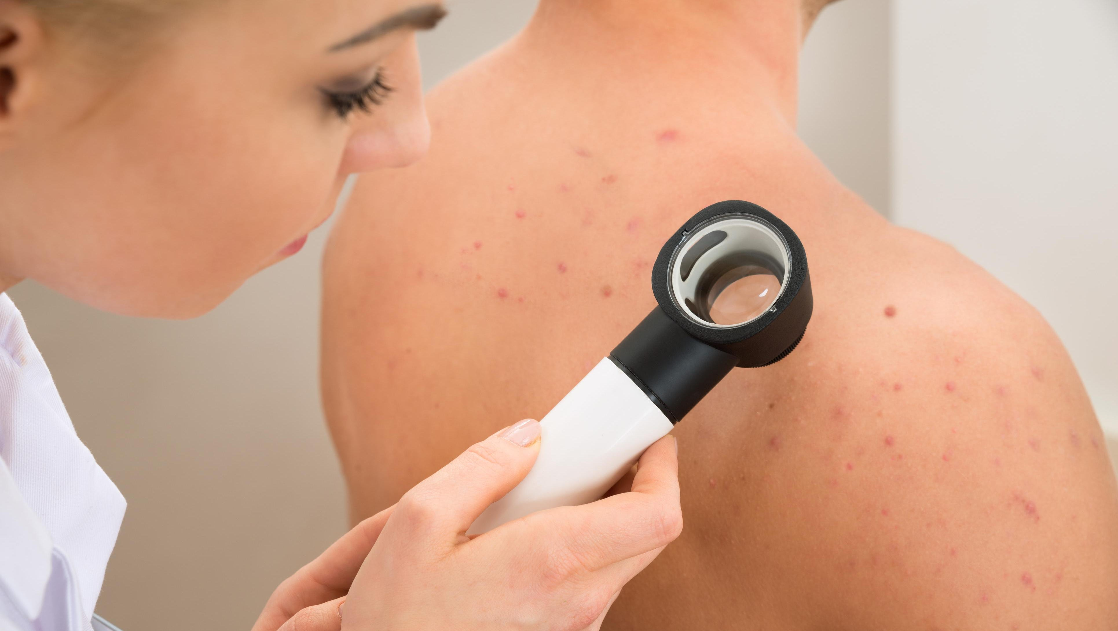 Hammerling Know The Three Types Of Skin Cancer