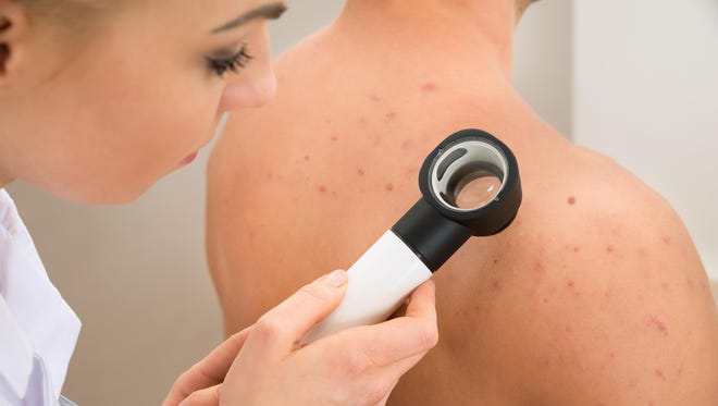 Skin cancer can strike anyone, so getting checked regularly, especially for Floridians, is key to detecting it early.