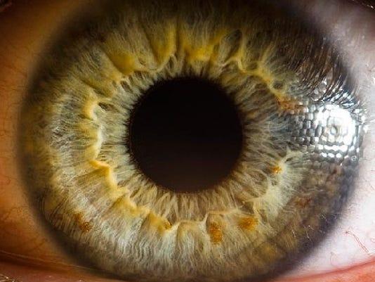 636343219890296583-0103-LOC-TC-eye.JPG
