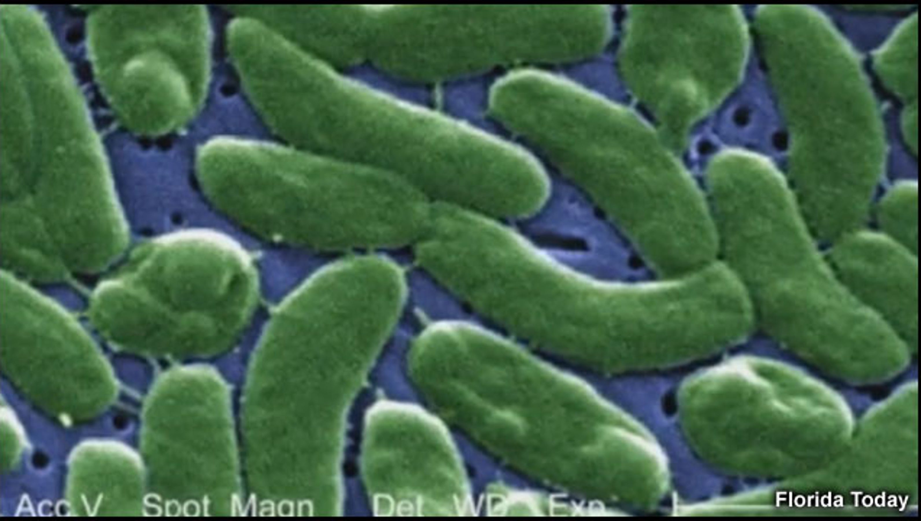 flesh eating bacteria essay I was rushed to the hospital, where doctors eventually diagnosed me with necrotizing fasciitis—also known as flesh-eating bacteria—a bacterial infection that was destroying my tissue the .