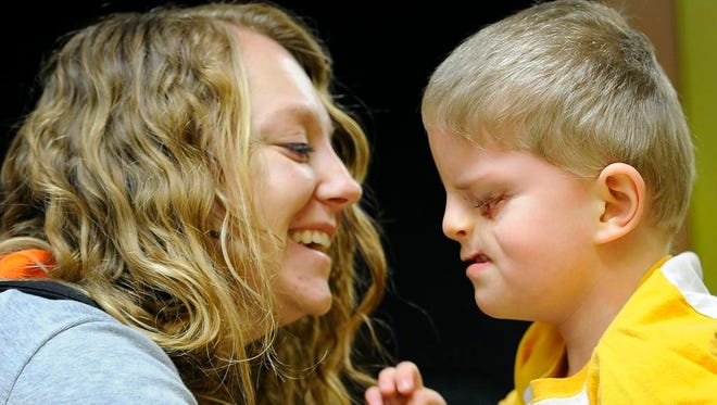 Lacey Buchanan shares a moment with her son Christian, 4, who was born with Tessier Cleft Lip and Palate, a very rare birth defect.