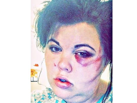 Emily Hill was beaten unrecognizable by her ex-boyfriend