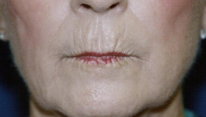 BEFORE: Wrinkles and lines around the lips can give a much older appearance.