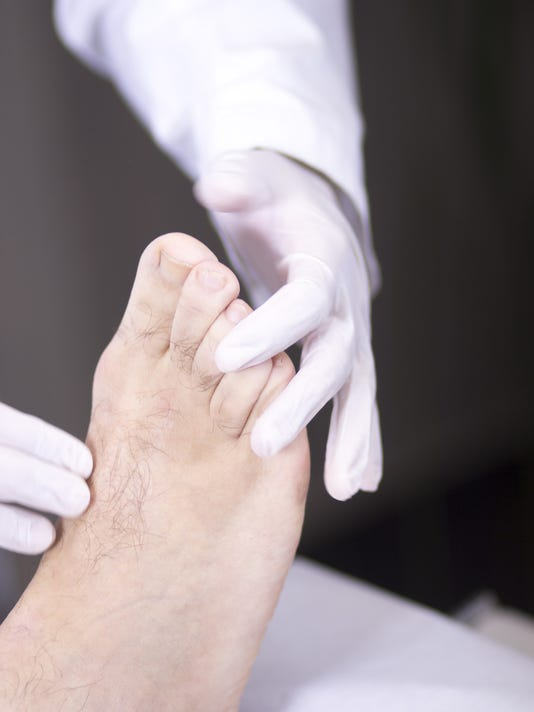Home remedies: fighting athleteís foot