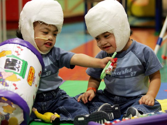 In this Dec. 8, 2004, file photo provided by Children's Hospital at Montefiore in New York, brothers Clarence, left, and Carl Aguirre, sit upright unassisted to play. When they were born joined at the head, their mother remembers doctors in the Philippines telling her that she would have to choose which one would live and which would die. But 10 years ago doctors at Montefiore Medical Center in the Bronx were able to save both boys in an operation.