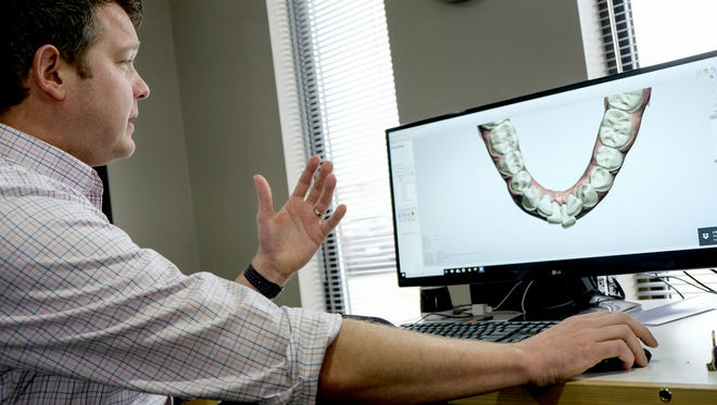 Motor City Lab Works partner Christian Groth describes the use of digital scans that are used to make molds of a patients teeth to be used for retainers and aligners with digital printers on Thursday, February 1, 2018 at the company in Birmingham.
