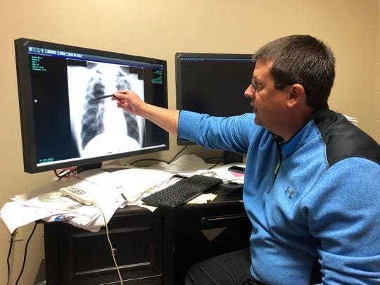Dr. Brandon Crum points to the X-ray of a black lung
