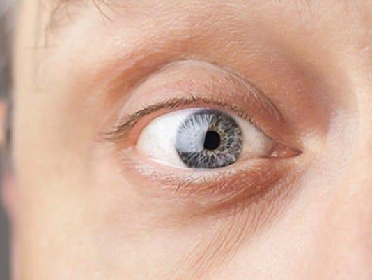 635521701100350009-EyeSpy