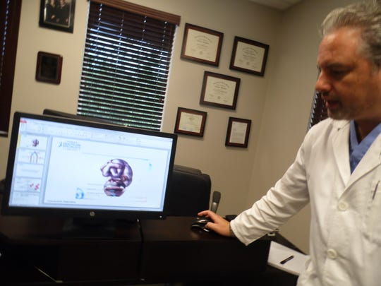 Dr. Hugo Davila says the scar-free hysterectomy surgery significantly reduces the chances of prolapse.