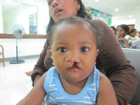 The children Venditti's team operated on were often undernourished because their cleft lip or palate prevented them from eating properly.