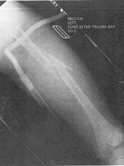 X-Ray from Jacob Back's femur injury suffered in a fifth-grade football accident. Jacob, a senior from Harrison High School, came back from this injury to finish all-SWOC in basketball and track.