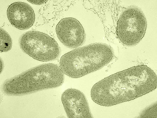 Harmful strains of E. coli can cause diarrhea, cramping,