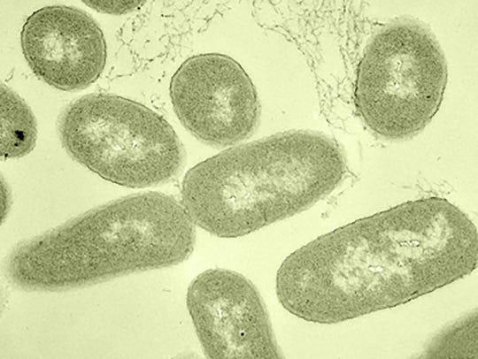 Microscopy image of E. coli bacteria.