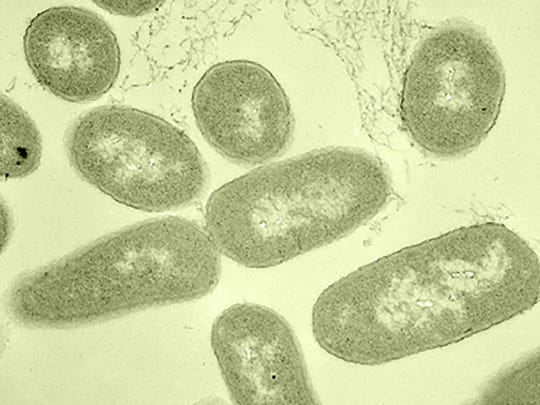 Microscopy image of E. coli bacteria.