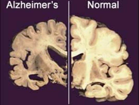 IMG_Alzheimer_s_Research_9_1_0Q2SO314.jpg_20121207.jpg