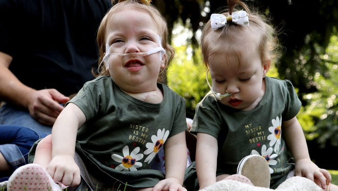 The 15-month-old Irwin twins Amelia and Sarabeth Irwin of Petersburg were born conjoined at the chest in 2019.  They were separated during a 10-hour surgery at C.S. Mott Children's Hospital in Ann Arbor in July.