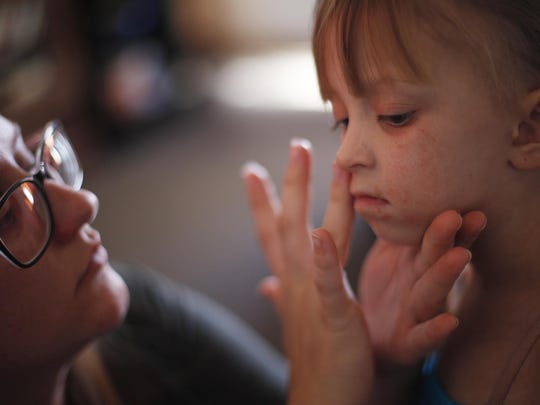 Acacia Hathaway puts Aquaphor on her daughter Ella's rashes on her face at their home in Tonopah on Nov. 4.