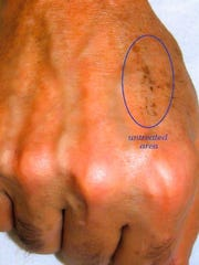 """AFTER: """"The Hand Lift"""" is a unique procedure that transforms older-looking hands into younger-looking hands in minutes."""