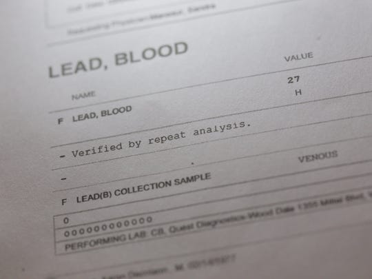 Stinson's test results show he has blood-lead levels
