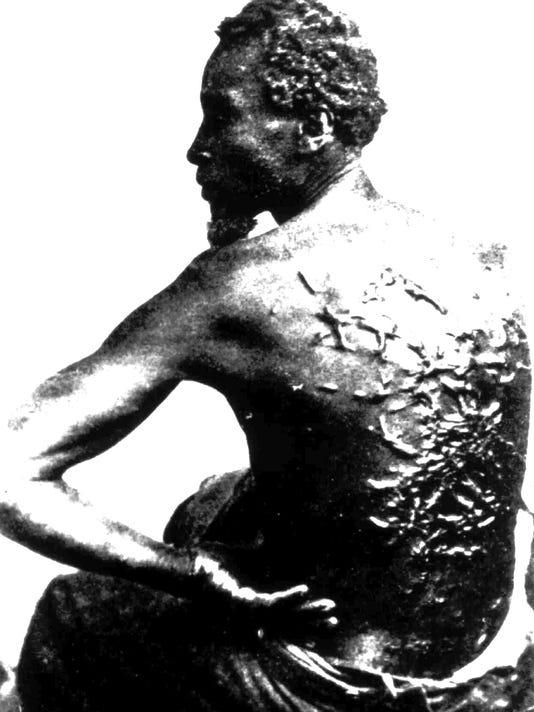 slavery scars