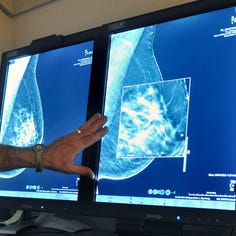 Breast calcifications may require follow-up