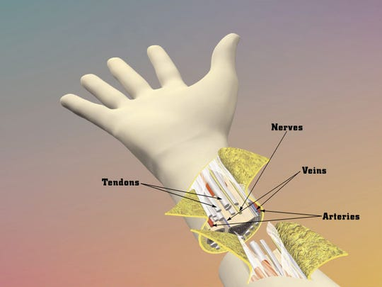 Tendons, Nerves, Veins, and Arteries must be attached.