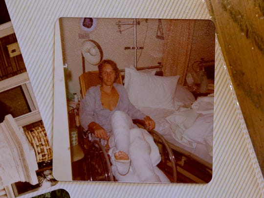 Following an accident in 1975 where his legs were crushed, Bob Johnston had both legs in traction for months at Columbia Hospital.