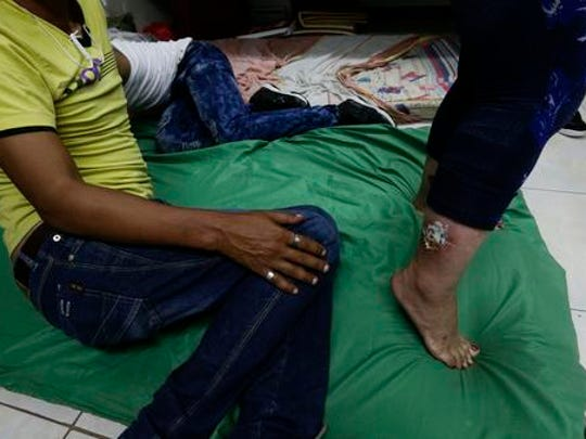"""A Cuban migrant shows her leg that she injured on her route to the US, at a shelter in Panama City, Thursday, Jan. 12, 2017. President Barack Obama announced Thursday he is ending a longstanding immigration policy that allows any Cuban who makes it to U.S. soil to stay and become a legal resident. The repeal of the """"wet foot, dry foot"""" policy is effective immediately."""