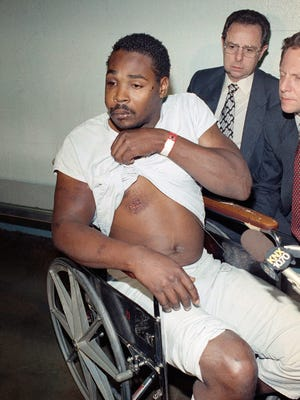 Rodney King, 25, shows a bruise on his chest during a press conference at the Los Angeles County Jail in March 1991. King was the subject of a videotaped and nationally televised beating by officers of the Los Angeles Police Department.