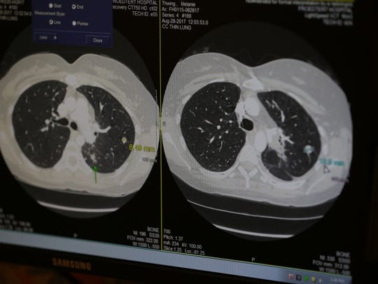 A CT scan of a spot on the lung of Melanie Thwing.