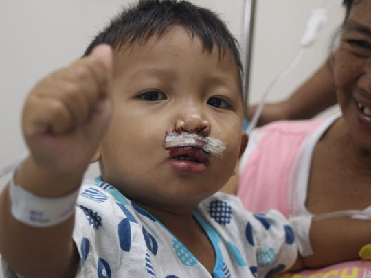 One of Dr. John Venditti's patients waves to the camera. Thirty children received cleft lip and palate repair on Venditti's recent trip to the Philippines.
