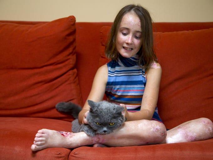 Lizzy Hendrickson, 9, pets her cat, Buddy, in her Phoenix