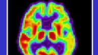 PET scan of a brain in the early stages of Alzheimer's disease.