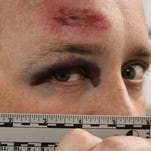 Lawsuit: Neenah police 'unjustifiably' concluded that Funkwas an ambusher