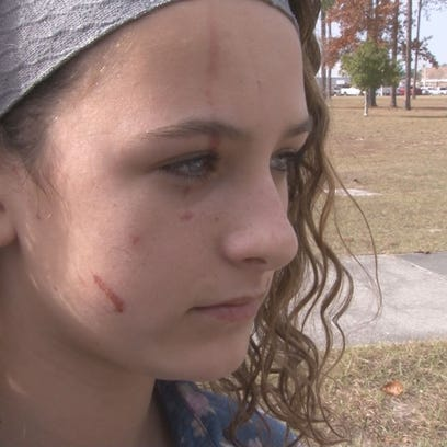 Logan has signs of alleged attack on her face day after