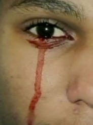 http://www.gannett-cdn.com/-mm-/3a51354759c8ab715a8035562885ae0ba873a8ff/c=107-0-407-400&r=183&c=0-0-180-238/local/-/media/USATODAY/USATODAY/2013/10/17/1382005951000-bloody-tears.jpg
