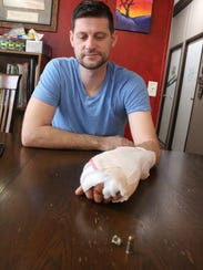Pastor Chad Stecker, his left hand wrapped in bandages, looks at the bullet that damaged his hand when he accidentally shot himself in January. The incident hasn't changed Stecker's approach to security at his Tioga church, Arise Church. The church has a security plan, including members who carry concealed weapons, as well as a security system.