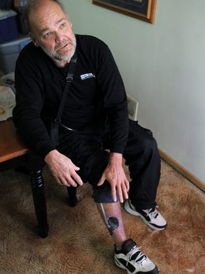 Tom McLaughlin shows a wound on his leg related to a medical emergency on Tuesday  at his home in Sioux Falls. McLaughlin lost his job at Bell Inc. in Sioux Falls last week after missing five days of work because of a medical emergency.