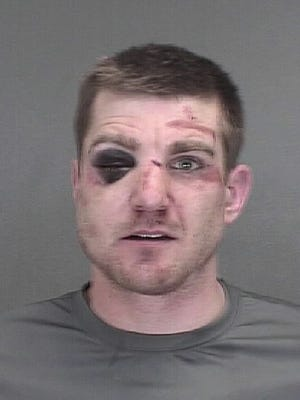 Justin Belanger of Ashwaubenon claims the Green Bay Police Department used excessive force during his 2014 drunken driving arrest.