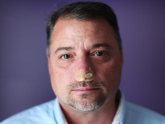 Bob Bleck of Mentor, Ohio, was diagnosed with sleep apnea about two years ago, but thinks he's had it for 30 years. He's given up the large CPAP mask that is the standard-of-care for sleep apnea and now uses disposable Provent Sleep Apnea Therapy nose patches. The patches have nostril plug inserts which uses the power of the person's  breathing to create Expiratory Positive Airway Pressure (EPAP) to hold the airway open and enable natural airflow.