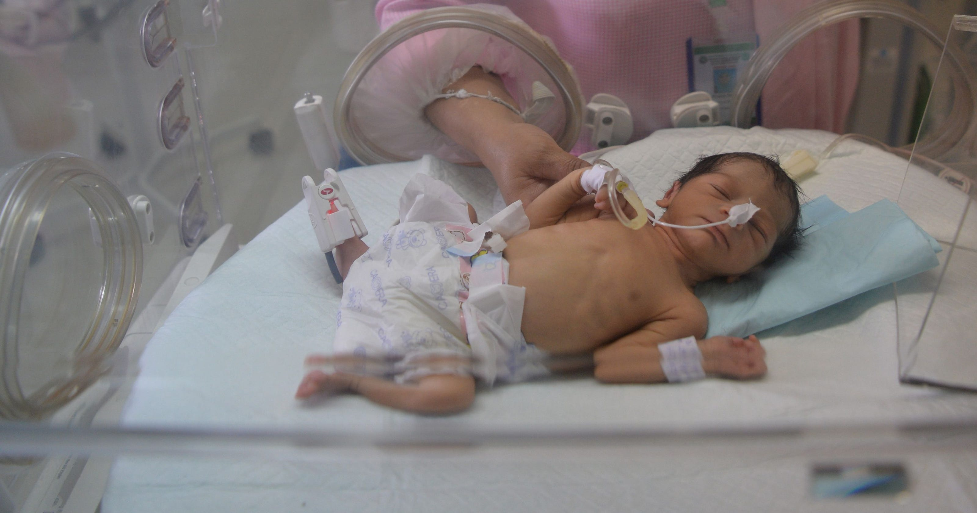 Unicef 4 in 5 newborn deaths preventable
