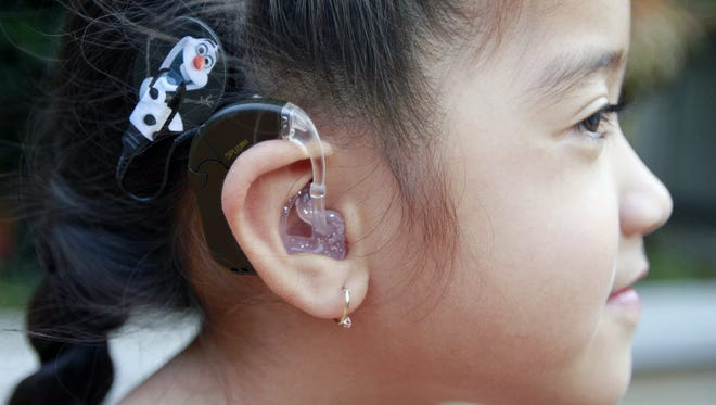 A kindergartner shows off her cochlear implant in Kahului, Hawaii, in November 2015.