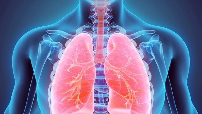 Lung cancer, the second most common cancer in both men and women, is the leading cause of cancer death in the United States.