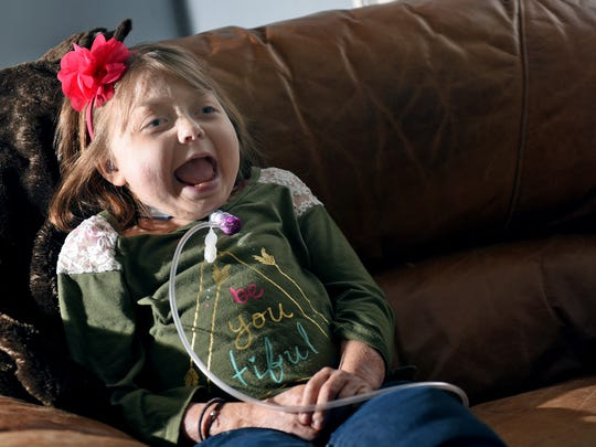Reese Burdette, 10, laughs while being entertained by family in their Mercersburg home. Reese, who was injured in a house fire on Memorial Day in 2014, has undergone many surgeries and lengthy hospital stays.