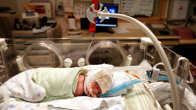 Eivan Jones, who was born prematurely in May 2014, is fed breast milk through a tube at Salem Hospital.