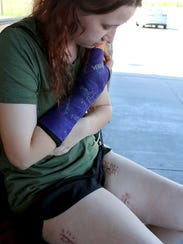 Kaylea Butts looks over several of her dozens of scars