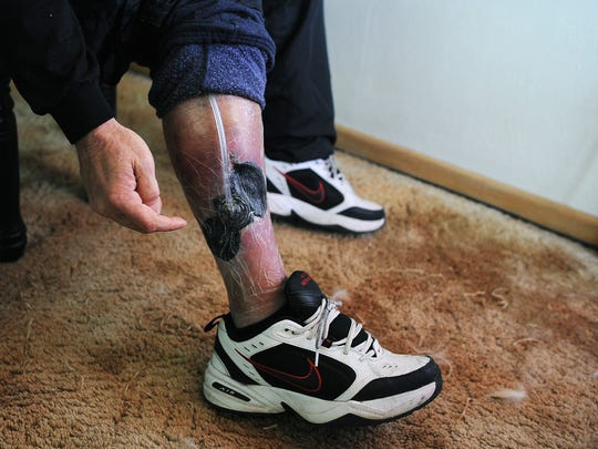 Tom McLaughlin of Sioux Falls shows a wound on his leg related to a medical emergency. McLaughlin lost his job at Bell Inc. in Sioux Falls after missing five days of work because of a medical emergency.