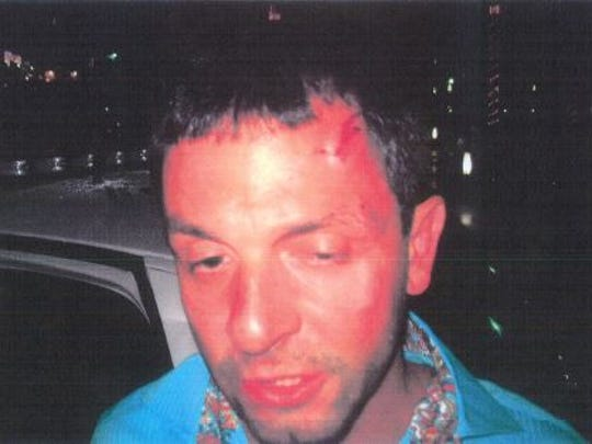A Naples police photo from the May 17, 2012, incident in the 400 block of Bayfront Place shows Aleksander Stepanovich with a bloodied face after a scuffle with police.
