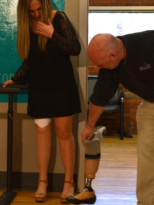 Prosthetist Arthur Graham compares Hillary Cohen's old prosthetic leg to the new one on her right leg.